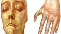 Системна склеродермія