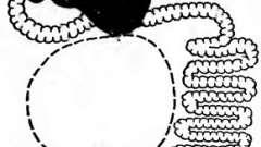 Зсув петлі тонкої кишки