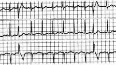 Спонтанне ектопічне збудження шлуночків - аритмії серця (4)