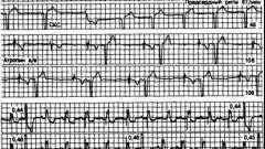 Ступінь атріовентрикулярної блокади - аритмії серця (4)