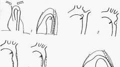 Звуження аорти