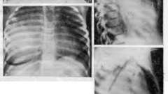 Томографічне дослідження - пухлини і кісти грудної порожнини у дітей