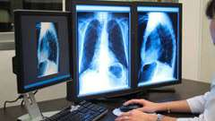 Томографія легень