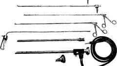 Трахеобронхоскопія - посібник з клінічної ендоскопії