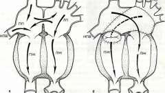 Транспозиція магістральних судин - захворювання серцево-судинної системи дітей