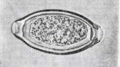 Трихоцефалез