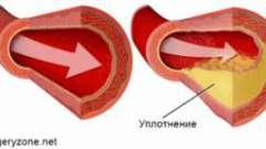 Ущільнення артерій
