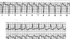 Умови виникнення дефектів внутрижелудочкового проведення - аритмії серця (4)