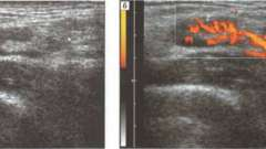 Уз-семіотика захворювань - дослідження ультразвукове лімфатичних вузлів
