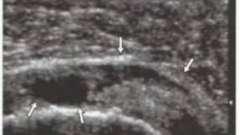 Уз-семіотика захворювань плеча - суглоби і м`язи ультразвукове дослідження