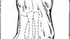 Вальгусна деформація i пальця стопи
