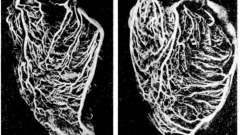 Відня серця - клінічна анатомія серця