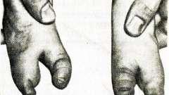 Верхні кінцівки - патологія опорно-рухового апарату у дітей