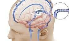 Внутрішньочерепна гіпертензія