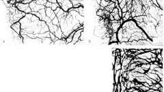 Внутриорганное артеріальний русло - клінічна анатомія серця
