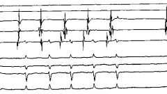 Внутрішньосерцеві ефі у хворих з передсердній тахікардією - аритмії серця (3)