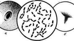 Збудник газової гангрени - мікробіологія з технікою мікробіологічних досліджень