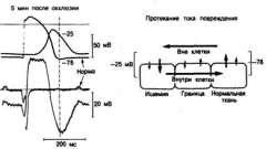 Друга фаза шлуночкової аритмії - аритмії серця (5)