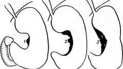 Випинання стінки шлунка - ніша