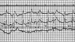 Висновки і терміни - електрокардіограма при штучному водія ритму серця